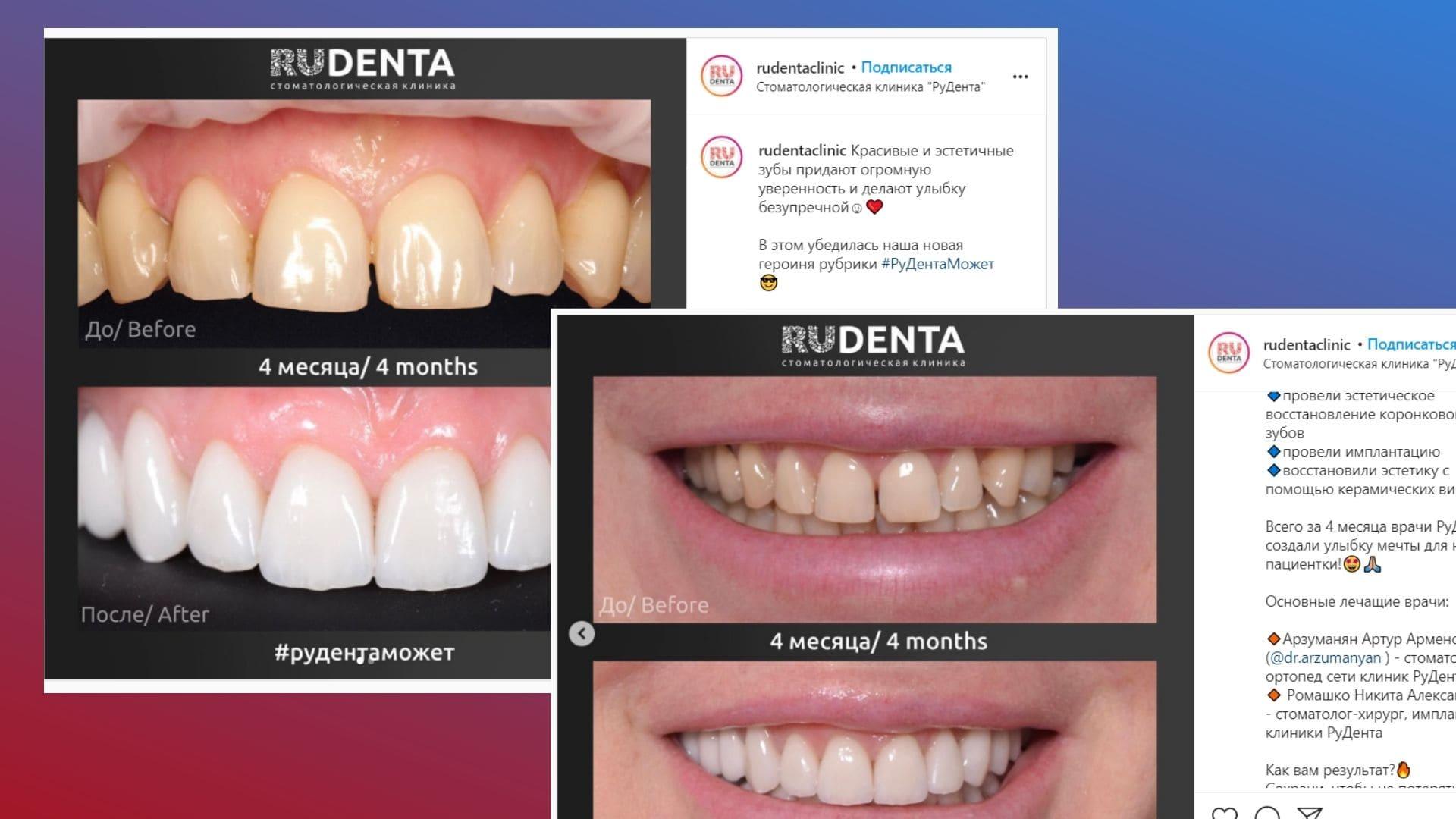 До/после от стоматологии