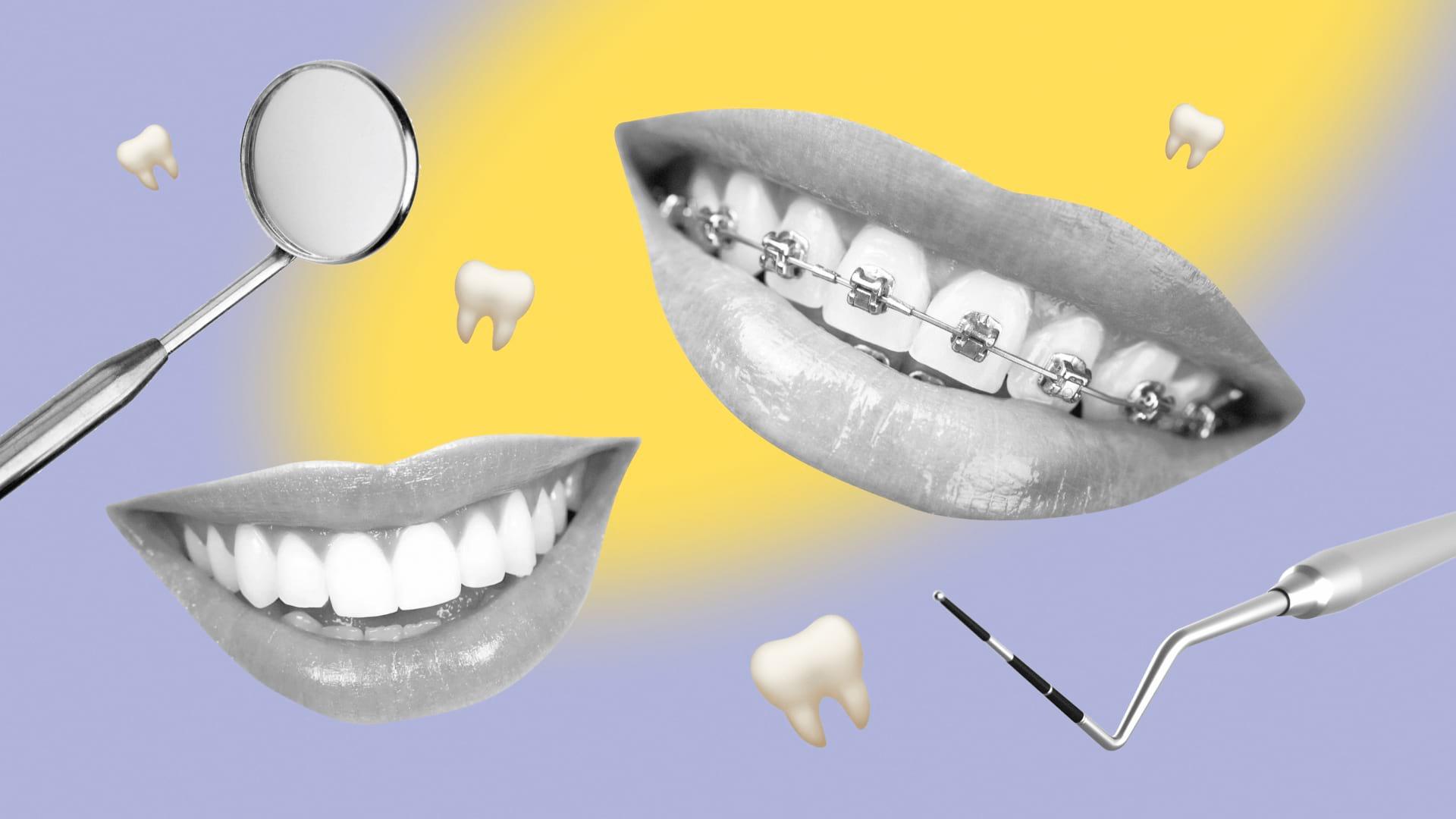 Готовый контент-план для соцсетей стоматолога